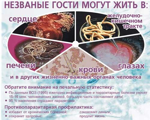 migraciya-glistov-simptomy-parazitov (500x403, 233Kb)