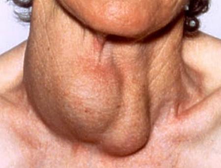 Лечение облысение ремолан