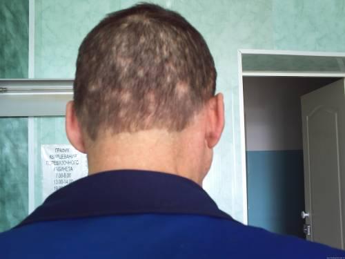 Как делать маску для волос с витаминами а и е