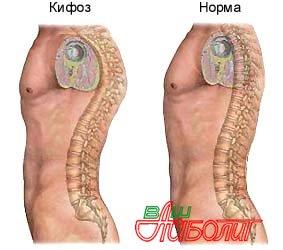 1344933491_vidy-i-metody-lecheniya-kifoza (283x250, 16Kb)