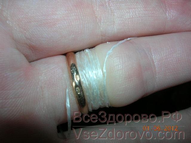 этих типов как снять кольцо с ушибленного пальца термобелье пропускает влагу