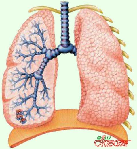 - - - 1342471087_disseminirovannyy-tuberkulez-v-organizme-cheloveka (476x520, 47Kb)