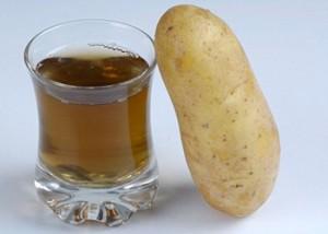 картофель1 (300x214, 13Kb)