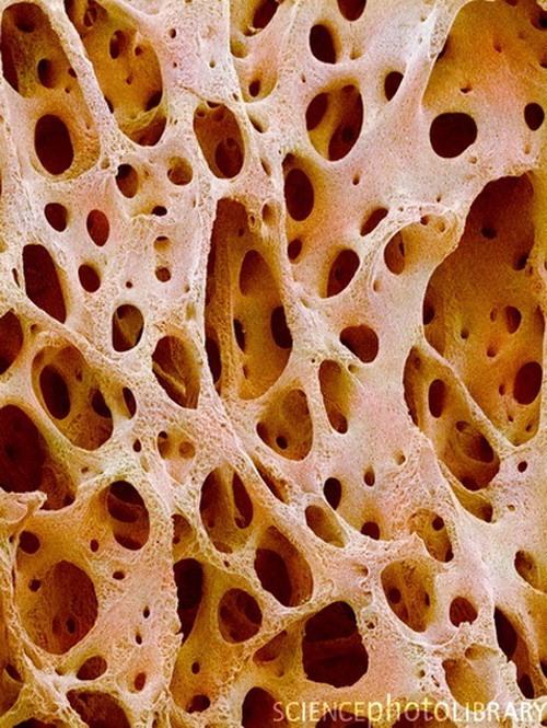 Костная ткань. Attached Images. Re Все под микроскопом.