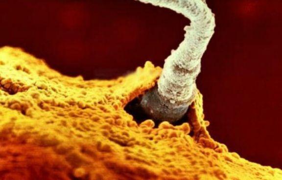 6 способов необычного применения спермы