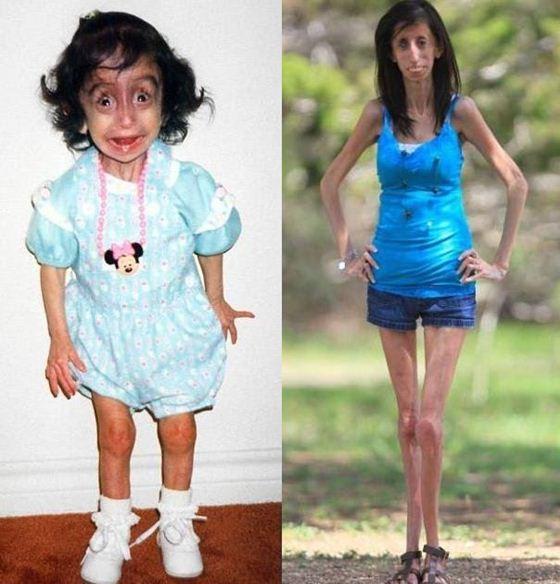 Lizzie Velasquez Лиззи Веласке в детстве и в возрасте 21 года