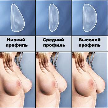 Подтянуть грудь операционным способом