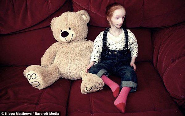 Дюймовочка пошла в школу. Фотографии карликовой самой маленькой девочки в мире