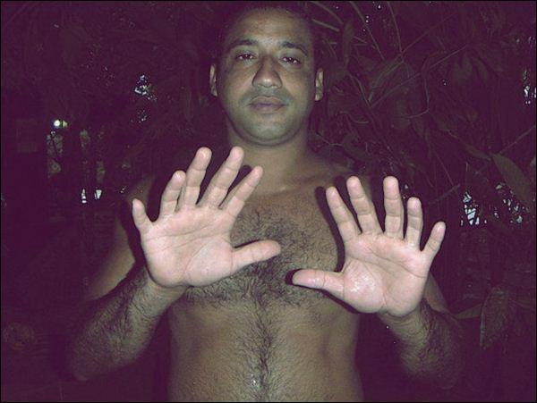 У 38-летнего кубинца Йоандри Эрнандес Гарридо на каждой руке и ноге по шесть пальцев