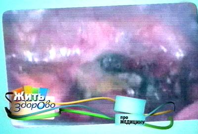 - - - 0 0 0 - - - zhit-zdorovo-med-161012 (400x270, 26Kb)