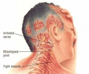 Что может болеть в шее с правой стороны спереди