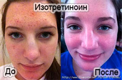 4907394_izotretinoin320x320 (488x320, 105Kb)