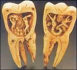 zub mudrosti (160x145, 5Kb)