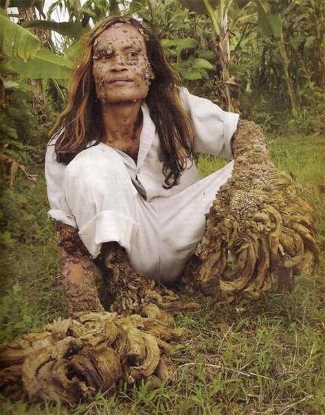 человек-дерево фото (473x604, 68Kb)