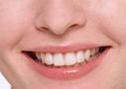 Зубы (250x177, 18Kb)