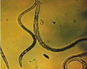4716146_ocisenieorganizmaotparazitov (300x240, 10Kb)
