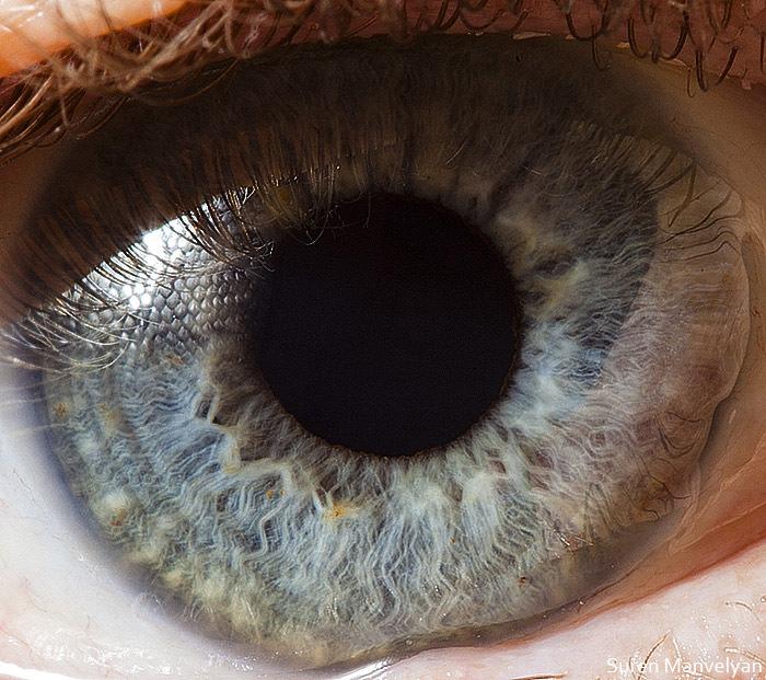 Оболочка глаза радужная фото
