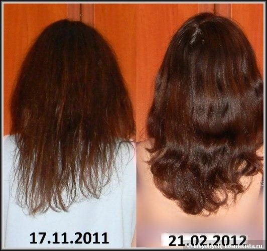Выпадают волосы советы эндокринолога