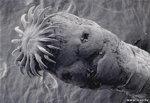 паразиты в пищеводе человека