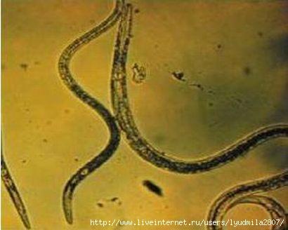 ocisenie-organizma-ot-parazitov (410x328, 59Kb)