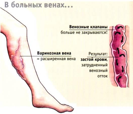 87354682_VARIKOZ_3 (527x450, 25Kb)