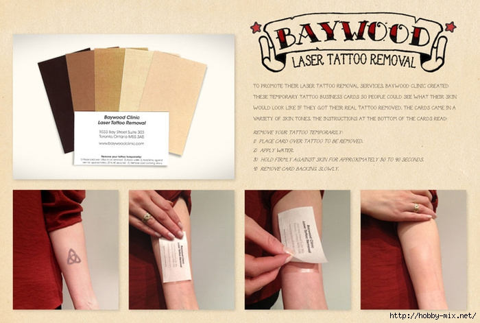 baywood-clinic-laser-tattoo-removal (700x471, 202Kb)