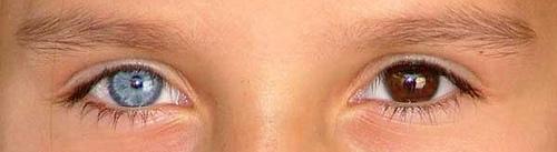 heterochromia6 (500x137, 31Kb)