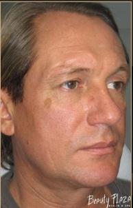 форма носа мужчины ДО (194x302, 88Kb)