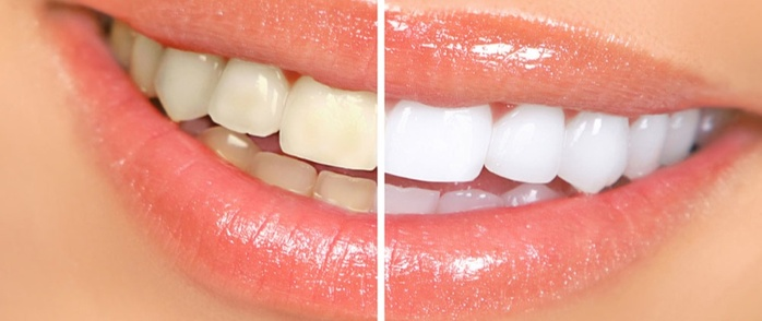 Otbelivanie-zubov-amazing-white (700x294, 59Kb)