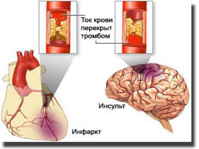 инсульт инфаркт (400x300, 43Kb)