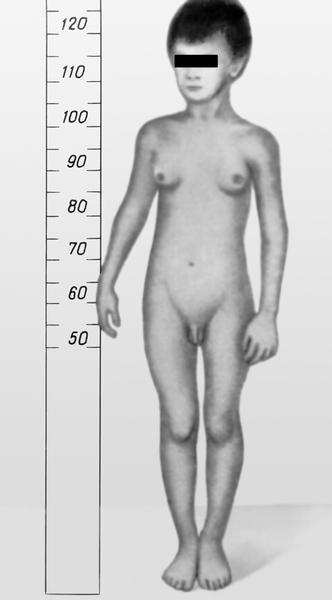 Рис. 1. мальчик 6 лет с патологической феминизацией, обусловленной эстроген