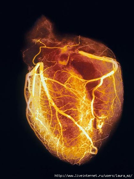 heart-angiogram_986_600x450 (435x580, 97Kb)