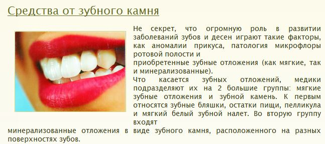 Как в домашних условиях размягчить зубной камень в домашних условиях