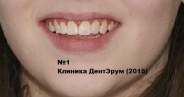 p_breket_1 (4) (368x194, 51Kb)
