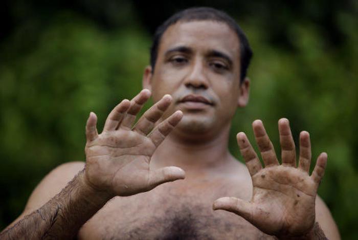 Самые интересные факты и фейки о большом пальце руки
