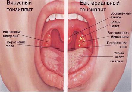 Красный член и болит горло