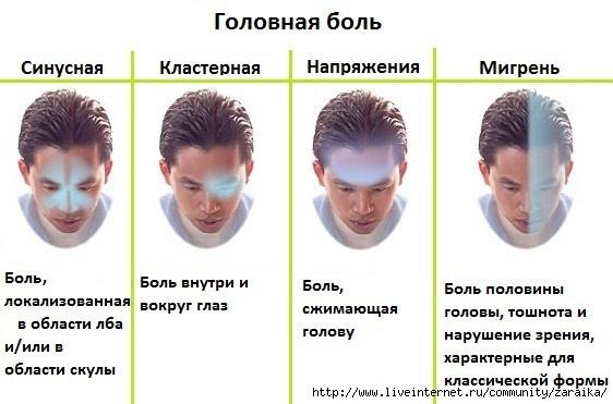 все о мигрени/4907394_vidygolovnojboli1 (562x371, 114Kb)