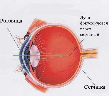 Внутриглазное давление это глаукома или нет