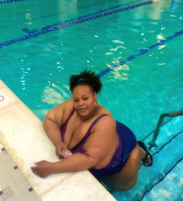 Ужасный вид полутонной женщины, которая похудела на 230 килограмм!