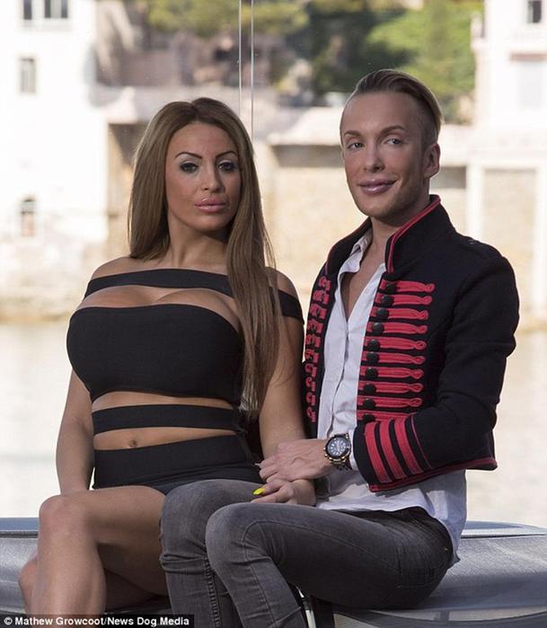 Парень и девушка потратили 300 тыс. на операции, чтобы стать похожими на Барби и Кена (шок! фото!)