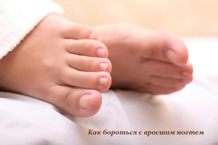 1445938537_Kak_borot_sya_s_vrosshim_nogtem (700x465, 229Kb)