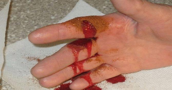 кровотечение1 (670x350, 153Kb)
