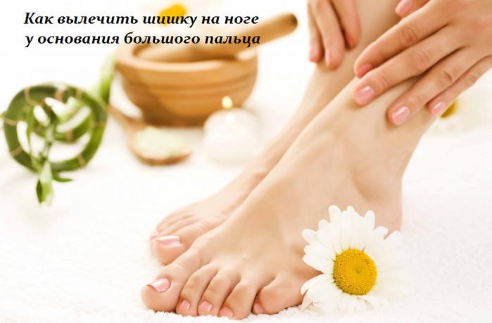 1459864921_Kak_vuylechit__shishku_na_noge_u_osnovaniya_bol_shogo_pal_ca (699x459, 345Kb)