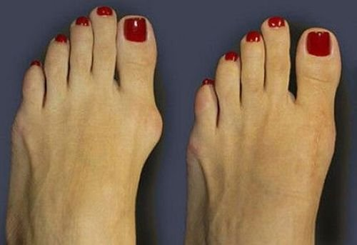 косточки на ногах (500x343, 20Kb)