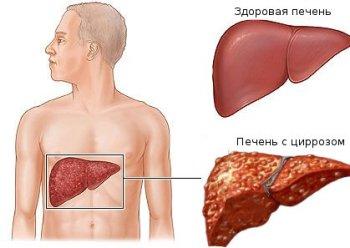 Цирроз печени/4574032_cirrhoz (350x248, 16Kb)