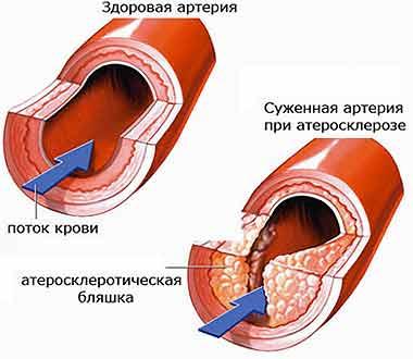 4524271_hondrolon_annotaciya_cena_10112_104 (380x330, 14Kb)