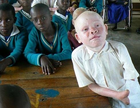 albino_amputation_01 (488x376, 76Kb)