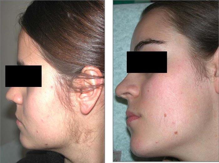 как удалить волосы под носом