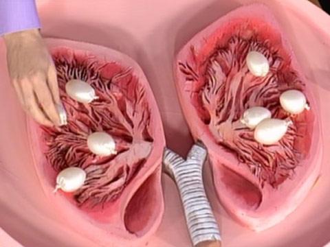 Пневмония, мать ваша