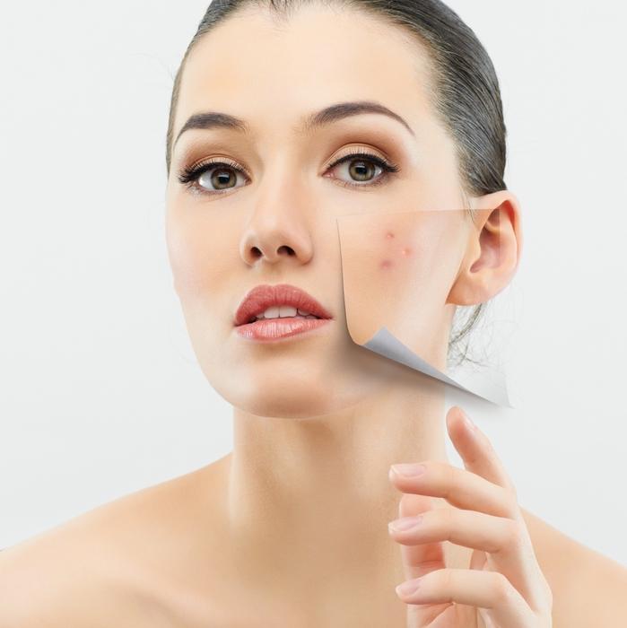 acne-011 (699x700, 234Kb)